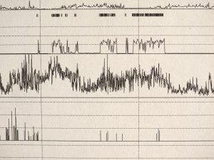 Parameterlinien von einer PSG